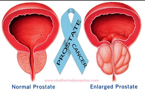 Prostate cancer may be a sickness